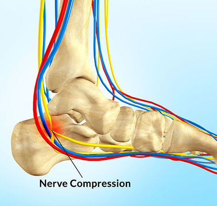 Nerve Compression Syndrome